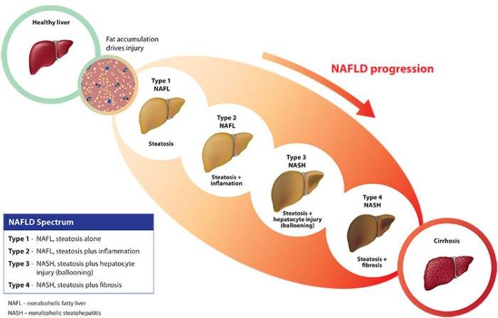 Non-Alcoholic-Steatohepatitis-NASH-Market