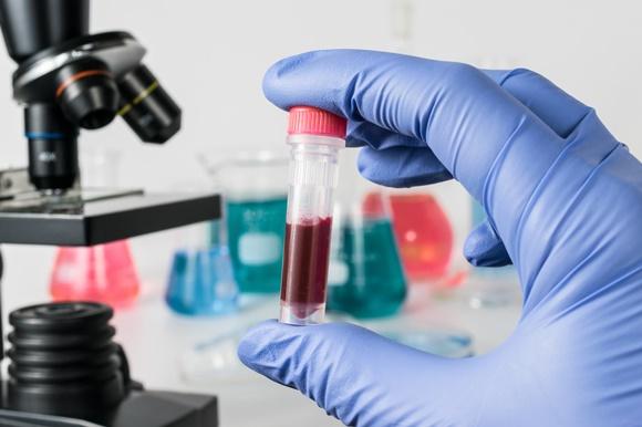 1074929_Blood-test-ss-18