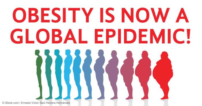 obesity-global-epidemic-fb